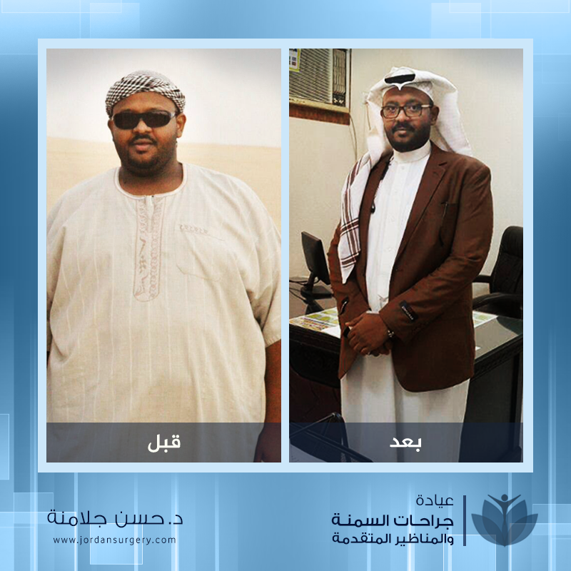 Before and after weight loss صور قبل و بعد عملية التكميم