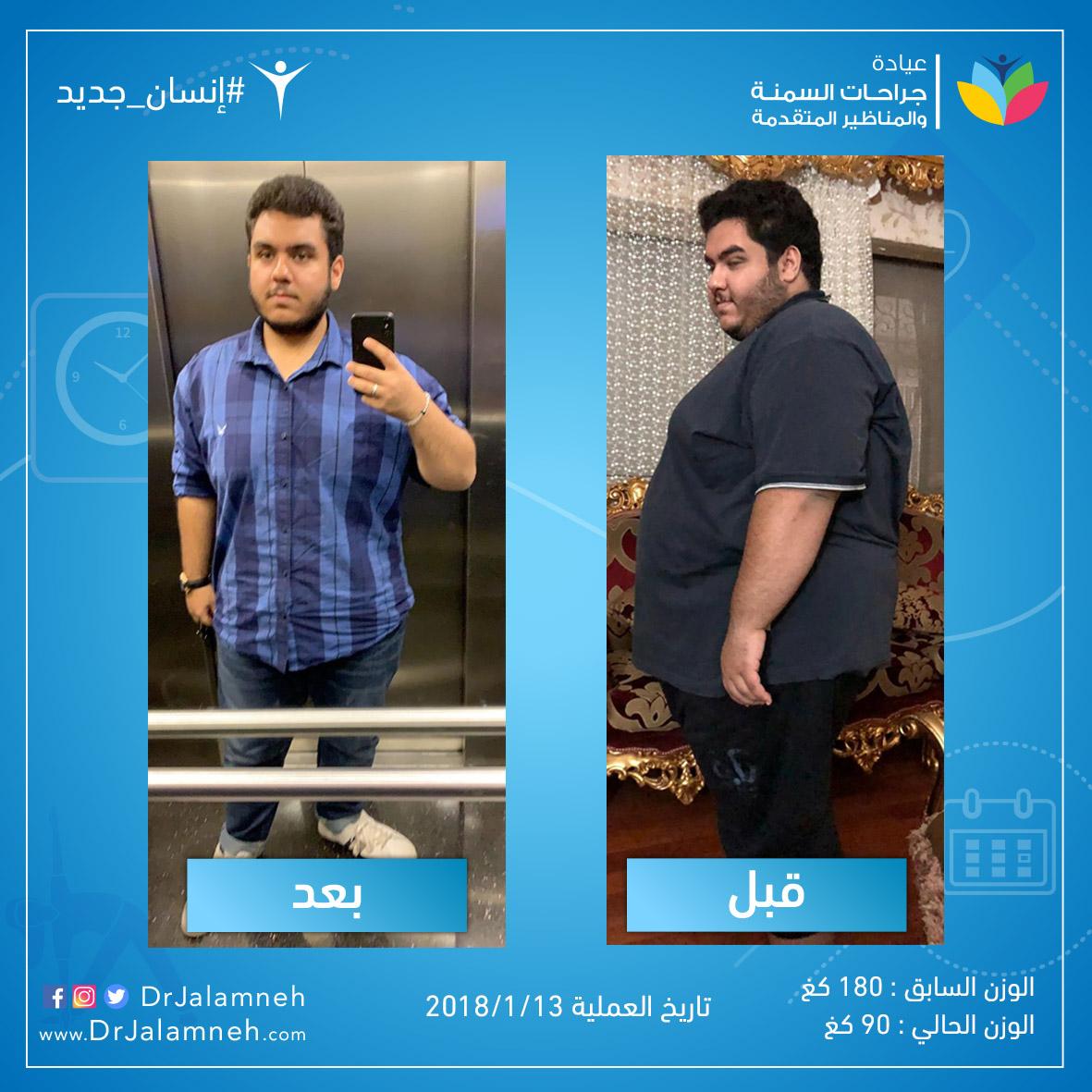 صور قبل و بعد عملية التكميم